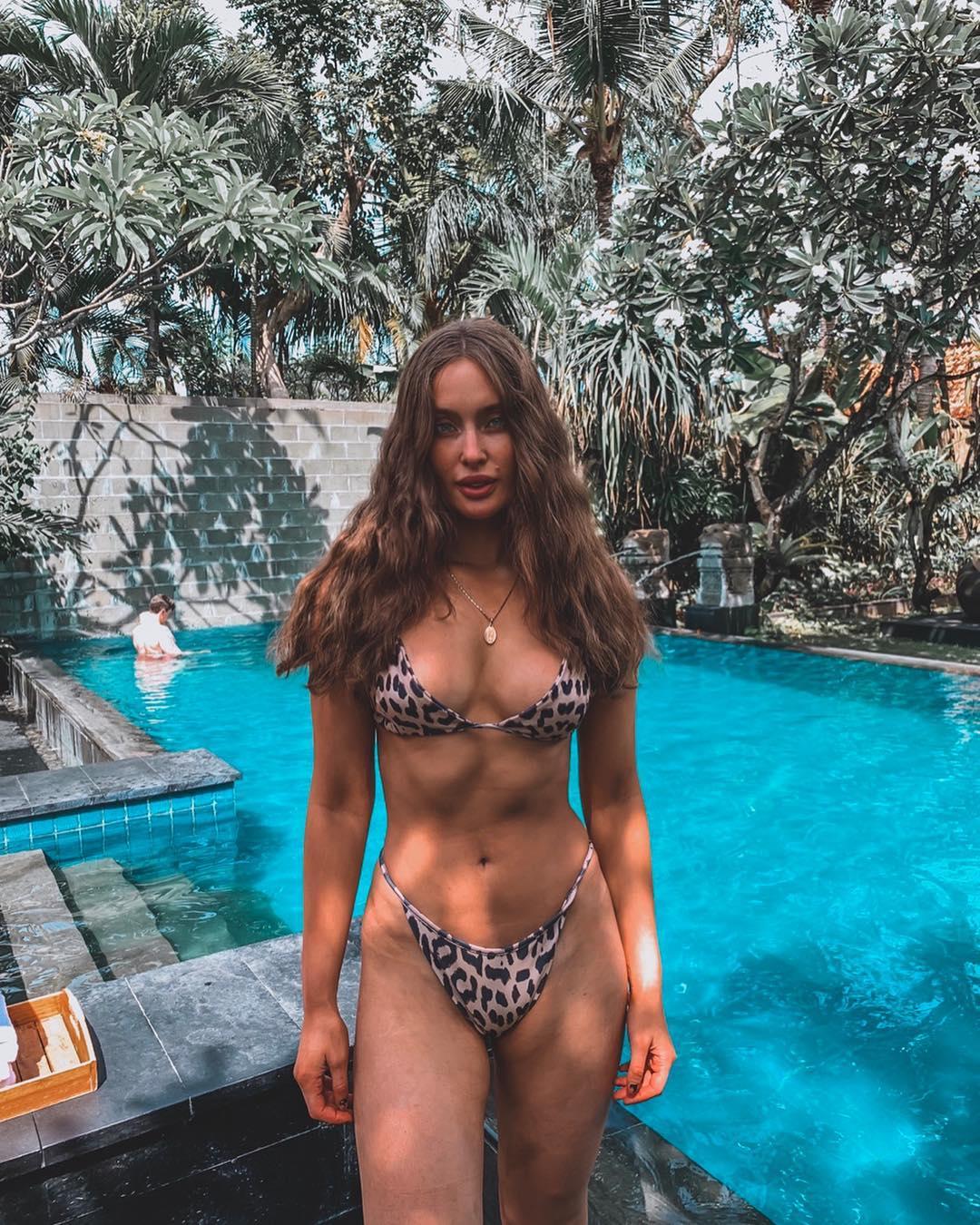 La concursante al Miss Universo que se fotografió mostrando sus estrías La irlandesa Rozanna Purcell hizo un llamado a todas las mujeres a aceptar su cuerpo tal y como es. Eqebyrqw